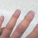 凍傷 指先に水疱
